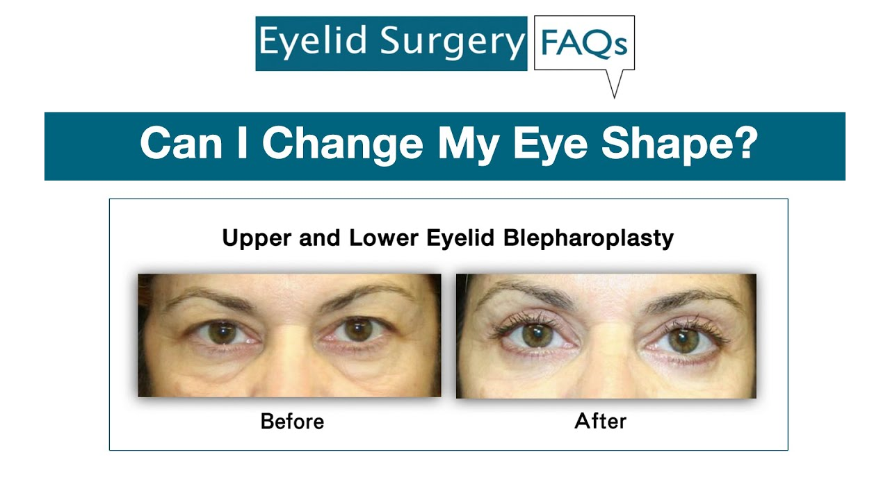 Almond Eyelid Surgery in New York by Oculoplastic Surgeon Dr
