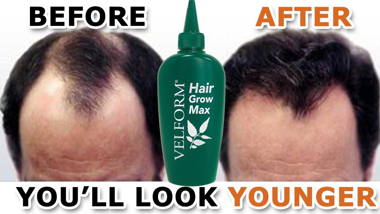 velform hair grow max  Hair Grow Max - YouTube