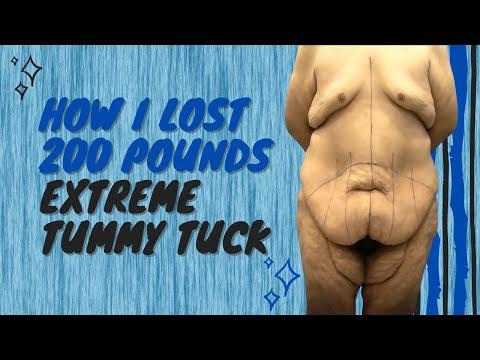 Abdominoplasty (Tummy Tuck) - Weight Loss - Long Beach - Irvine - CA - Dr. Chugay