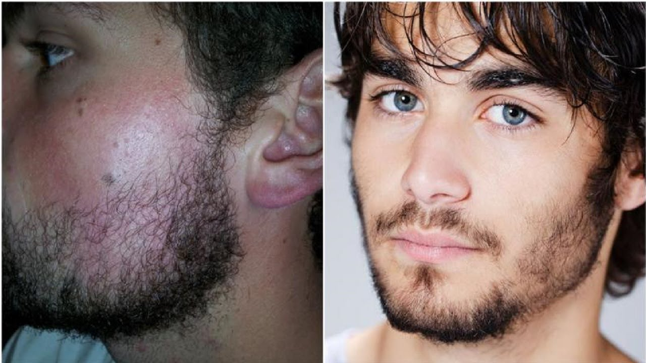 Speaking, facial hair grow quicker duly