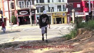 Protese de Desarticulação de Joelho Victor Sem Kanela Calçada e Terreno Baldio