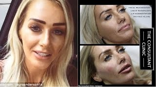 Love Island Laura Anderson's lip fillers CONFIRMED as cosmetics clinic
