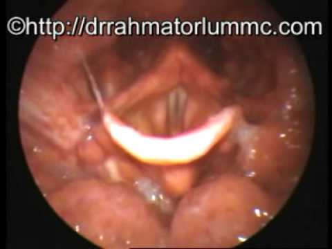 lingual tonsils - youtube, Human Body