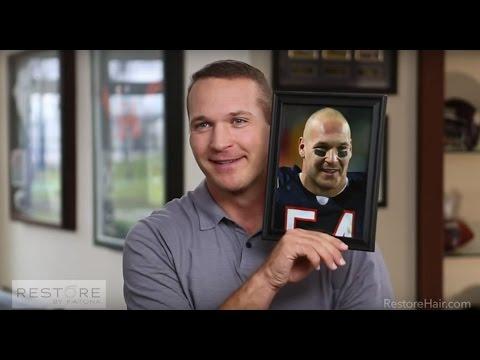 Brian Urlacher's Story | RESTORE | Tackles Balding