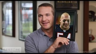 Brian Urlacher's Story | RESTORE | Tackles Balding