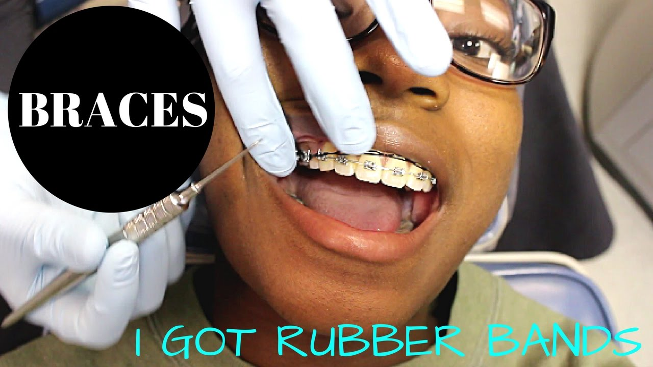 Braces UPDATE | New Wire and RUBBER BANDS - YouTube