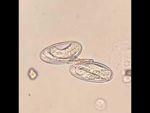 Coccidian paraziták emberben, Fascioliasis tünetei és kezelése