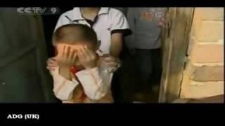 bimbo cinese con occhi di gatto azzurri riesce a vedere al buio - Cat Boy Stuns Doctors In China