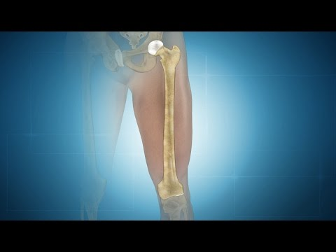 What is Femur?