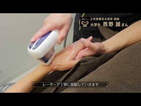 【ゴリラ脱毛】西野誠さん04|「腕+手」の完全脱毛に挑戦