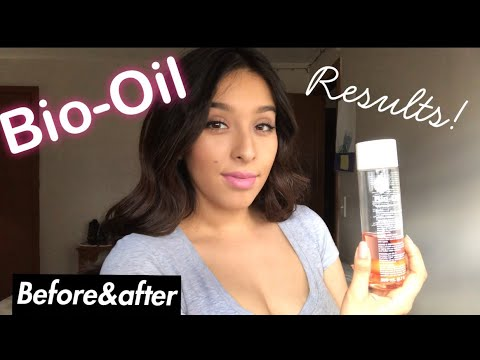 Bio-Oil | Stretch Marks| Before & After - YouTube
