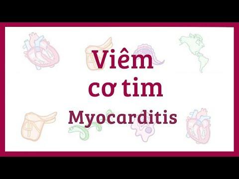 Viêm cơ tim - Nguyên nhân, triệu chứng, chẩn đoán, điều trị, bệnh lý