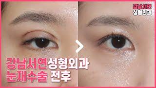 눈재수술 전후 사진 l 강남서연성형외과