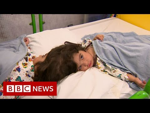 How doctors separate twins joined at the head BBC News