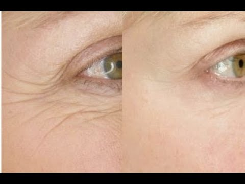 Have Beautiful Eyes with this Wrinkle Free Exercise to Smooth Eye Wrinkles | FACEROBICS®