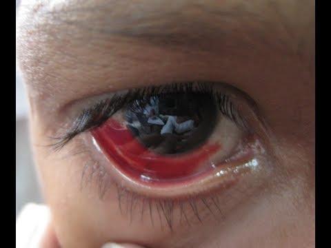 Remèdes Maison Faciles Et Efficaces Pour Le Traitement Des Infections Oculaires