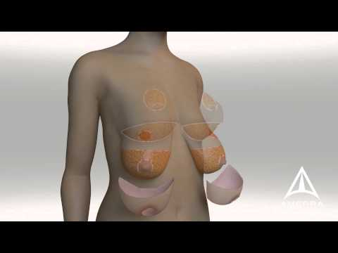 Comparison Of Traditional Mastopexy To The Horndeski Method - 3D Medical Animation