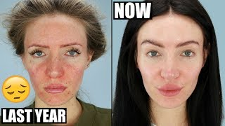 How I got rid of my redness, acne scarring and rosacea - skincare routine & treatments.