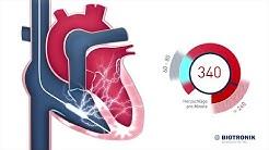 Defibrillator - ICD - Therapie (Film 6 BIOTRONIK)- Animation Medizin