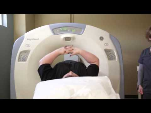 Lung Cancer Screening: The Life-saving CT Scan