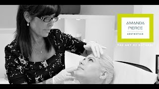 What is Botox How does it work thumbnail