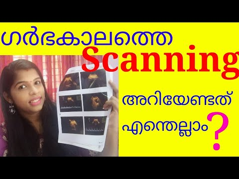 Types Of Scanning During Pregnancy Malayalam / Pregnancy Tips / Pregnancy Scanning Malayalam