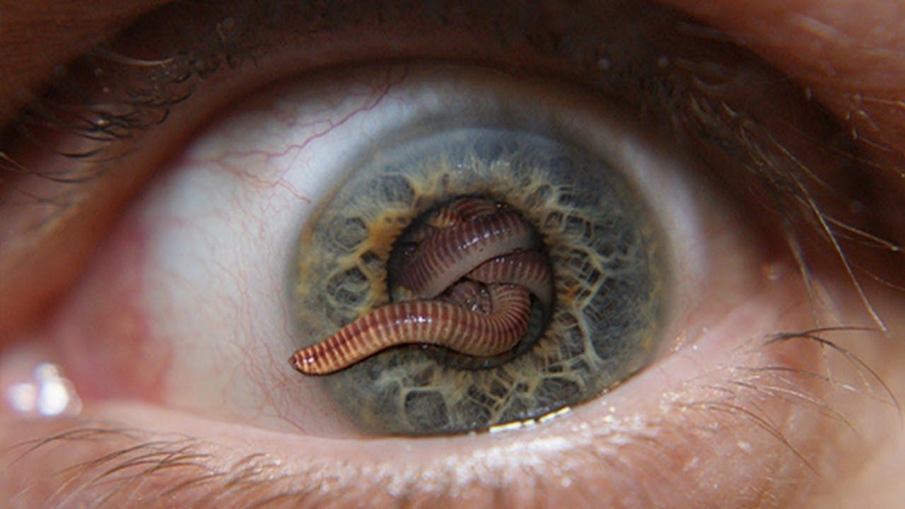 parasite - photo #14