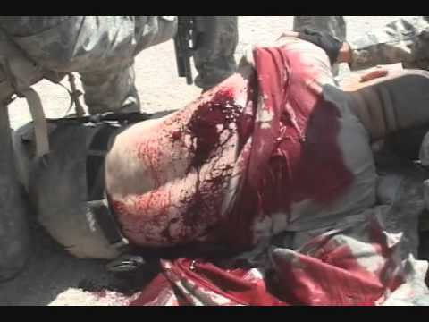 bleeding back wound Army training video ASTP  YouTube