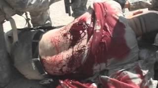 bleeding back wound army training video astp