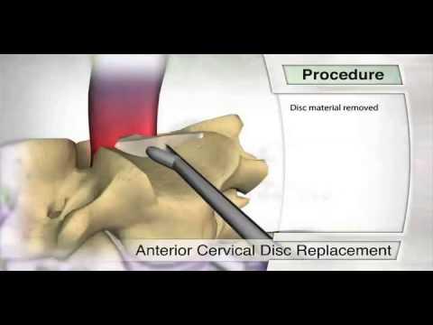 Patient Education - Anterior Cervical Disc Replacement ...