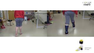 Before and After | Strong toe walking | DAFO Tami2