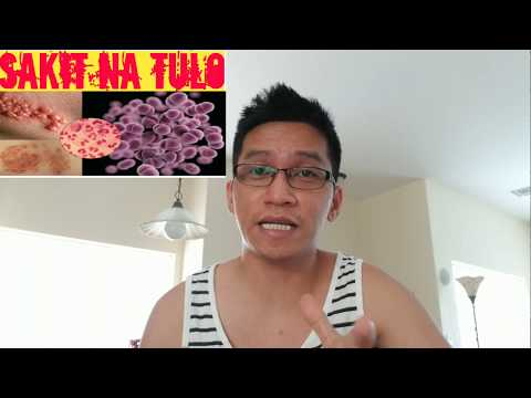 GONORRHEA/SAKIT SA TULO SIGNS AND SYMPTOMS IN THE PHILIPPINES