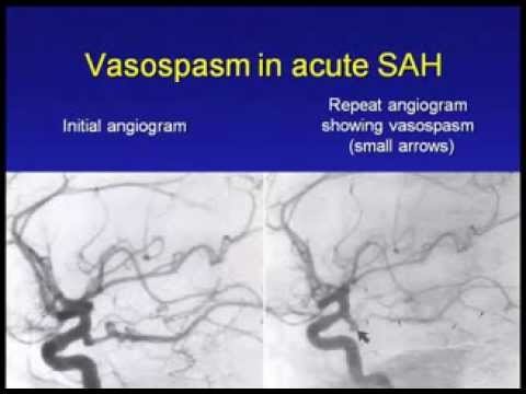 Management of Severe Stroke and Subarachnoid Hemorrhage