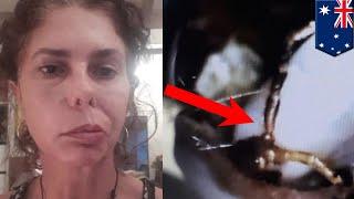 顔面神経麻痺となった女性 原因は耳に寄生したダニ - トモニュース ベル麻痺 検索動画 15