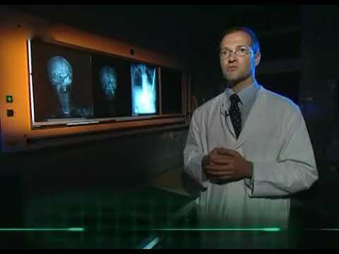 Autopsie Mysteriöse Todesfälle Youtube