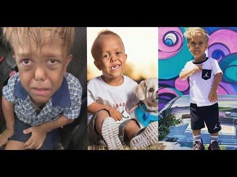 Mother of Australian boy raises awareness of bullying in viral video | Bullying victim Quaden Bayles