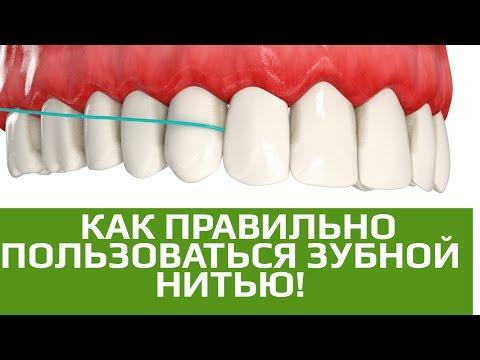 Флосс. Как правильно пользоваться зубной нитью
