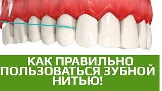 видео Флоссы (зубные нити) и флоссеры