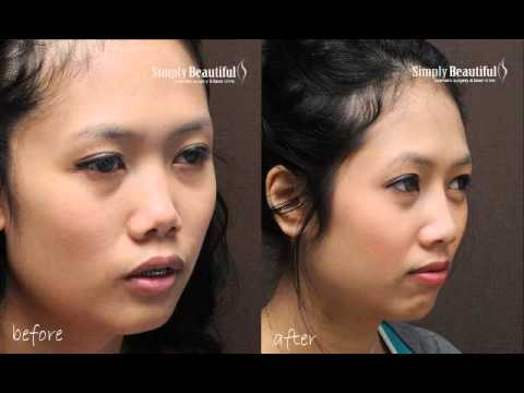 how to make your flat nose pointed naturally