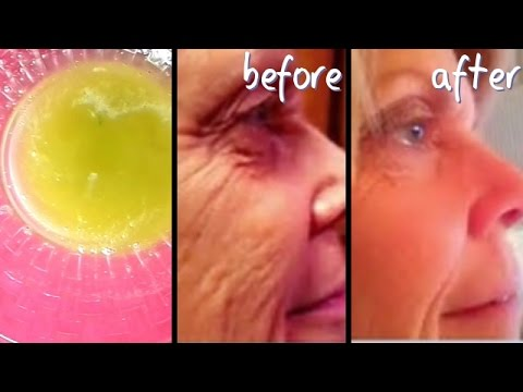A VERY STRONG TREATMENT FOR WRINKLES,  ANTI-AGEING EYE CIRCLE, FINE LINES  ANTI AGEING TREATMENT