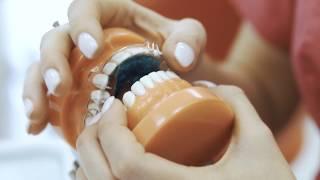 Rodzaje aparatów ortodontycznych - dr n. med. Izabela Walawender