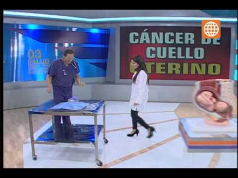Doctor TV- Todo sobre el cáncer de cuello uterino- 01/08/13