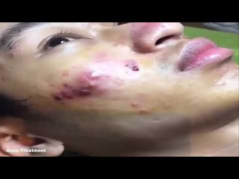Cystic Acne Draining Youtube
