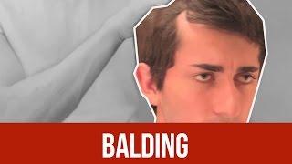 BALDING : FACE IT