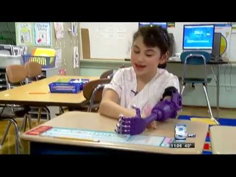 RIT on TV: RIT donates 3D-printed prosthetic arm to local girl