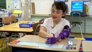 RIT on TV: eNABLE with a prosthetic recipient - WROC