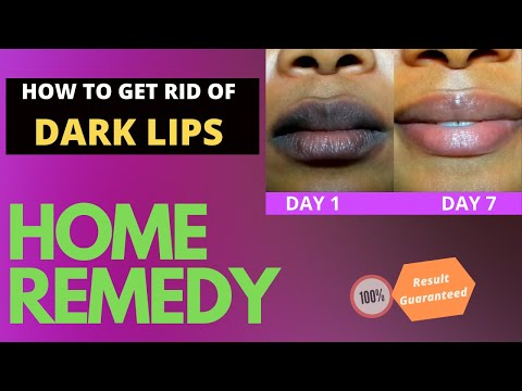 how-to-get-rid-of-dark-(black)-lips-at-home|-remove-cigarette-stains|-home-remedy-for-lip-care|befit