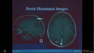Case Presentation: Treating Brain Metastases - by Matthew Ewend, MD