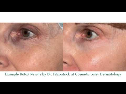 Botox for Crow's Feet, Frown Lines & Forehead Wrinkles | Richard Fitzpatrick, MD