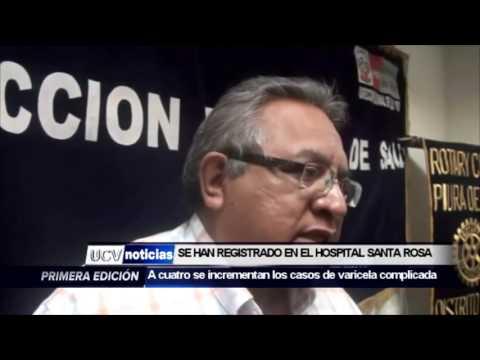 • A CUATRO SE INCREMENTAN LOS CASOS DE VARICELA COMPLICADA EN PIURA-UCV NOTICIAS PIURA